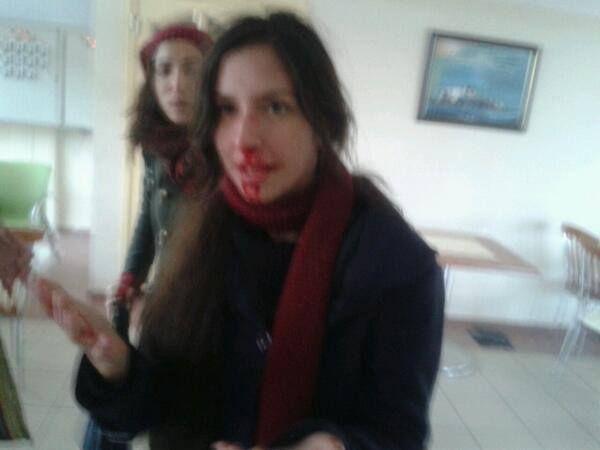 Kocaeli Üniversitesinde Berkin Elvan için toplanan öğrencilere polis saldırdı. Saldırıda Politeknik üyesi Sibel Artut yaralandı.
